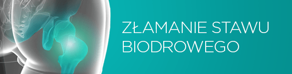 złamanie stawu biodrowego